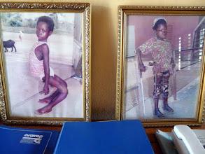"""Photo: avant et après traitement orthopédique ( sans chirurgie aucune ) voici plusieurs photos des réalisations """"miraculeuses"""" d'Emile et son épouse kinésithérapeute Eléonore"""