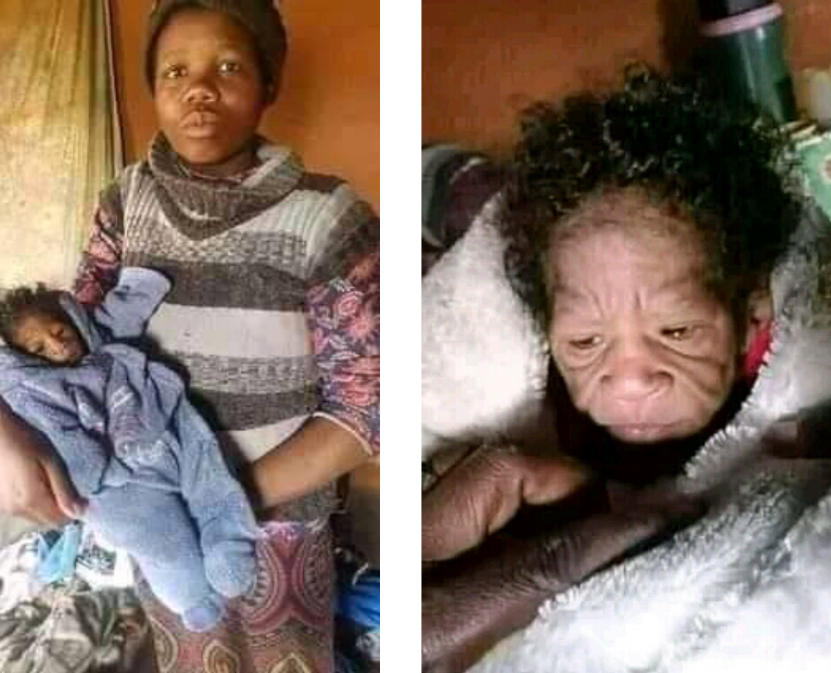 20-year-old SA woman gives birth to baby with rare genetic condition, progeria