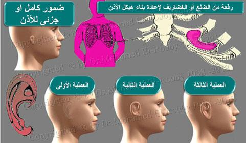 خطوات تكوين الأذن