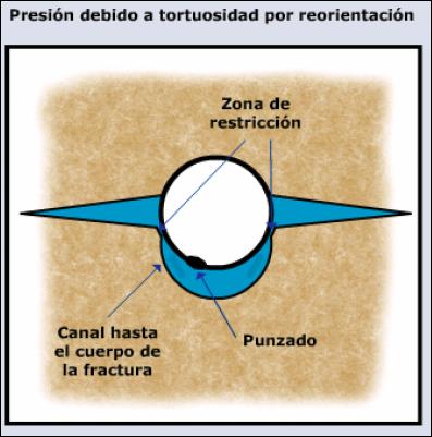 Tortuosidad 3