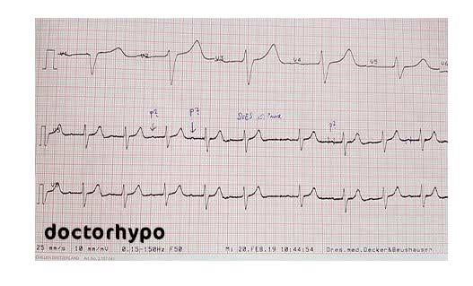 كتاب تخطيط القلب الكهربائي pdf