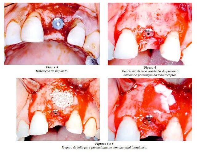 substitutos-osseos-implantodontia
