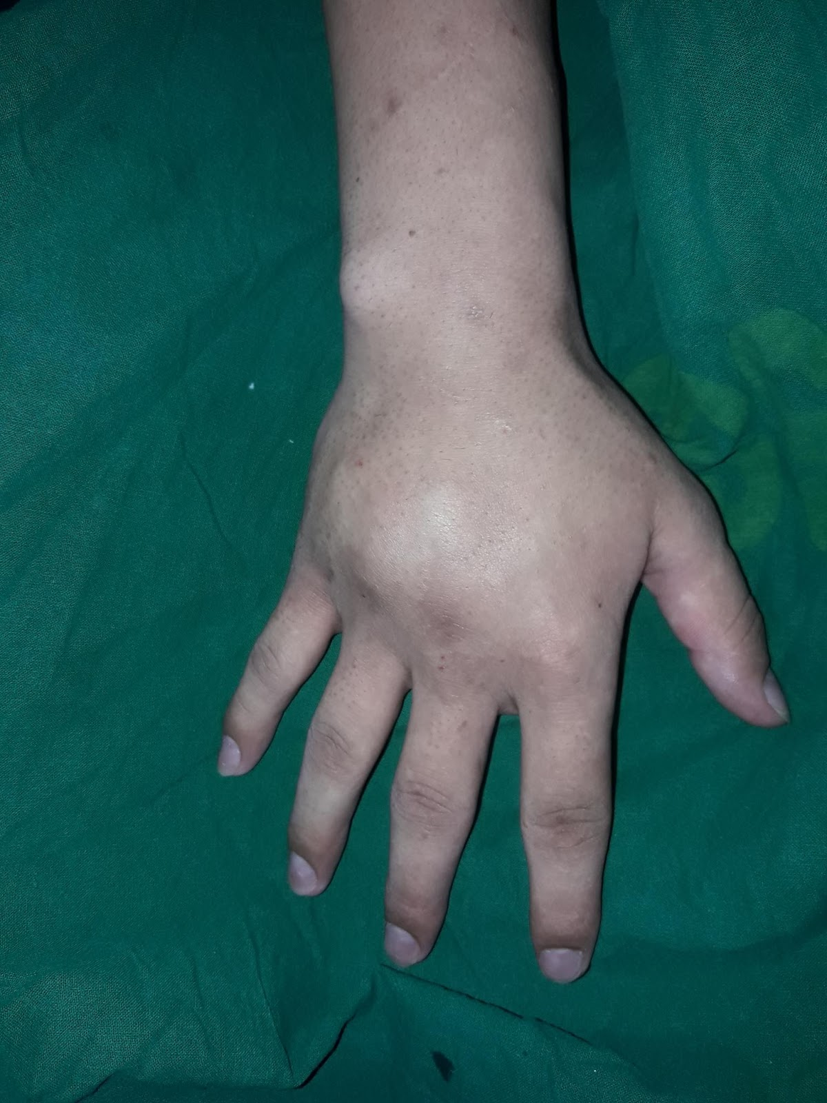 VIDHUNS PLASTIC SURGERY AND COSMETIC WORLD: Malunion # Metacarpal ORIF