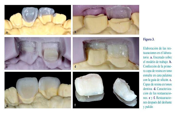 restauraciones-indirectas-resina