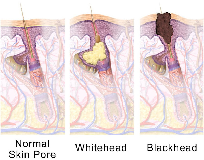 whitehead and blackhead