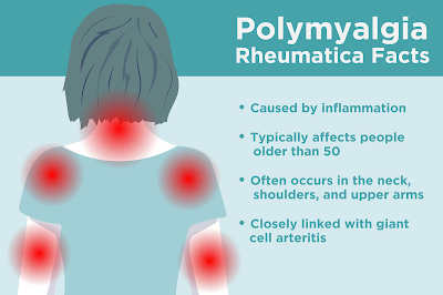 polymyalgia rheumatica treatment