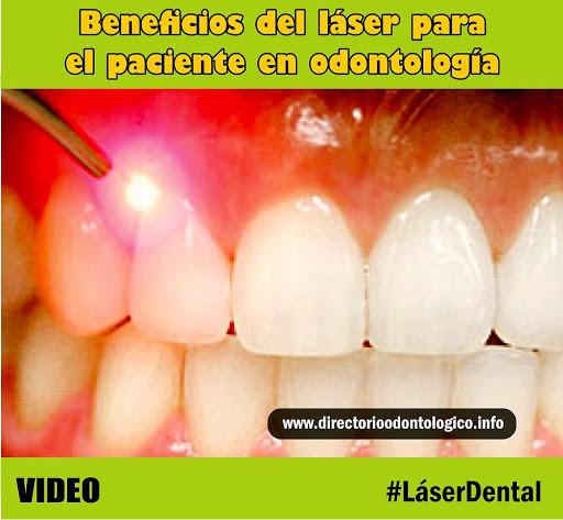 láser-odontología