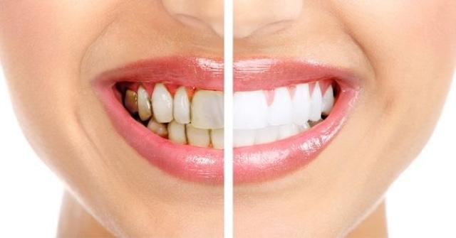 blanquer los dientes en casa