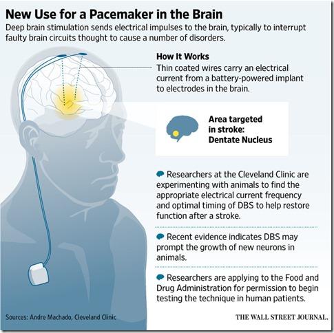 brainpacemaker