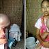 Joko Waras, Bocah Ini Menderita Penyakit Langka Yang Harus Segera Mendapat Bantuan Untuk Kesembuhan
