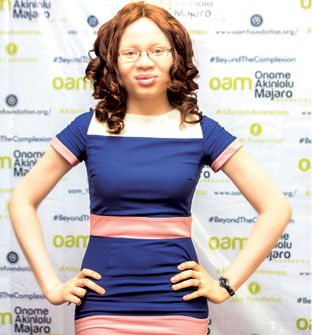 Mother comforted me as even friends harassed me for being an albino – Onome