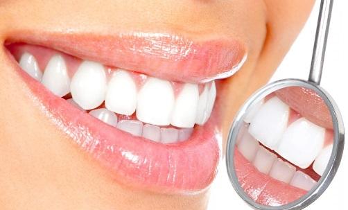 tooth whitening, white teeth, bright smile, dental
