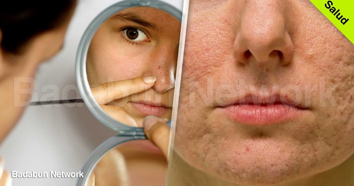 granos espinillas barros quitar acne