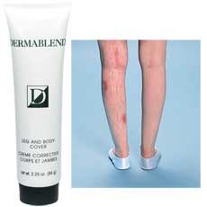 21895c3d1 Where Have You Been All My Life, Dermablend Leg and Body Cover?! + Bonus:  Customer Service Rant!