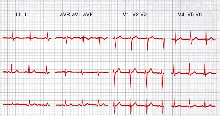 Ηλεκτροκαρδιογράφημα - καρδιολογικές εξετάσεις στο ιατρείο καρδιολόγου Χριστόδουλου Παπαδόπουλου