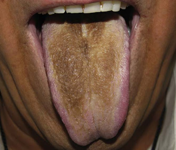 lengua-vellosa
