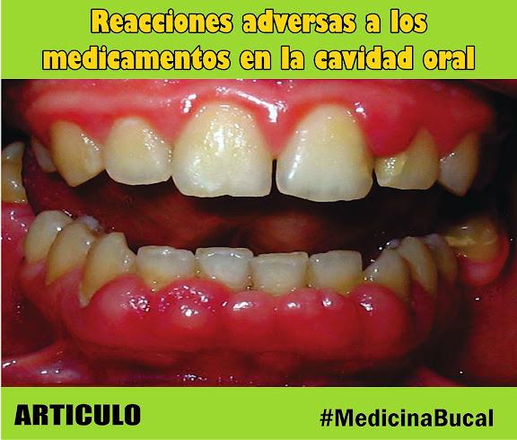 medicina-bucal