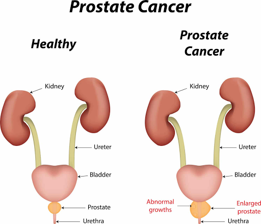 Research has assessed the effectiveness of a new urine test for prostate cancer.