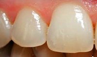 Age Changes in Enamel Dentin and Pulp