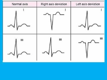 how to read axis deviation in ecg