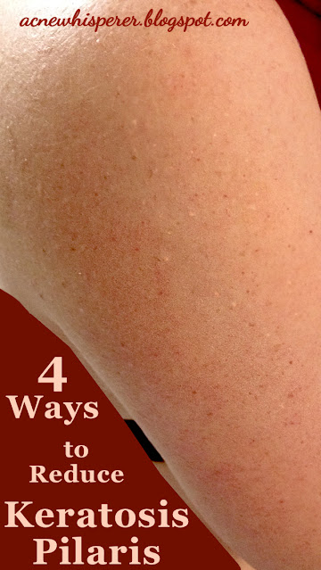 Different types of Keratosis Pilaris need different remedies.  Here are 4 ways you can address this pesky problem!