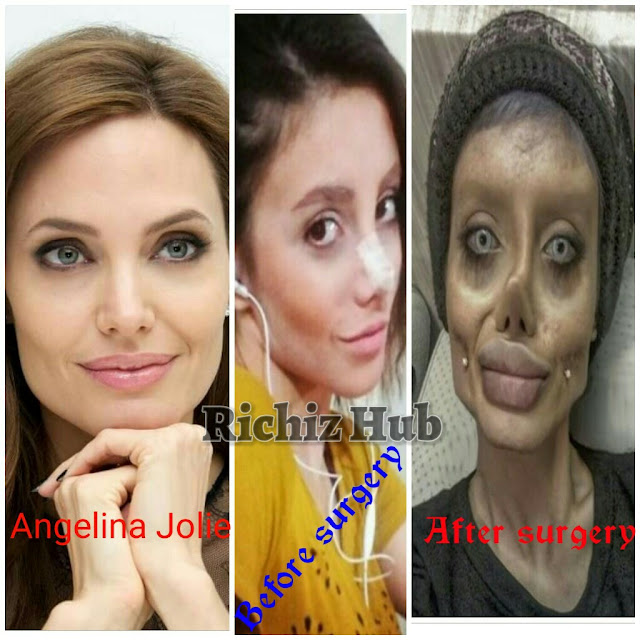 Sahar Tabar Undergoes 50 Surgeries To Look Like Angelina Jolie