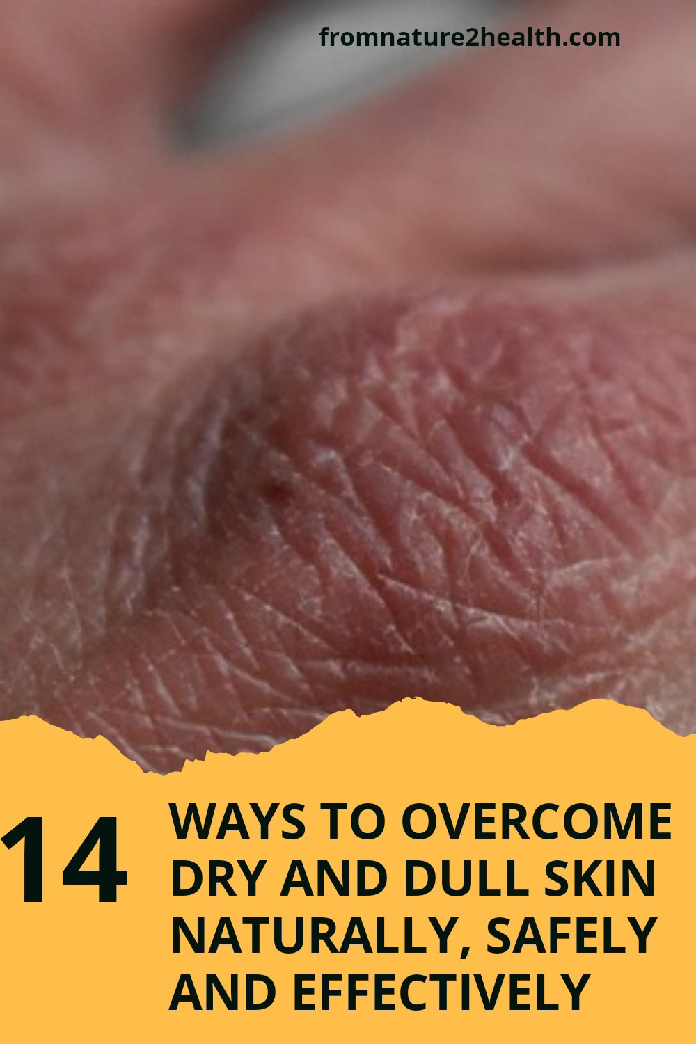 14 Ways to Overcome Dry and Dull Skin Naturally with almond, avocado, coconut oil, cranberries