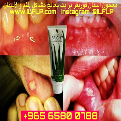 Kuwait Forever Toothgel - Gum treatment