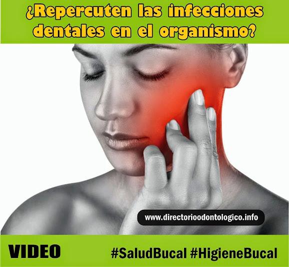 infecciones-dentales
