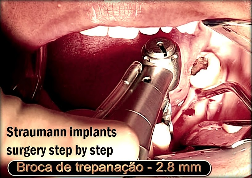 straumann-implants