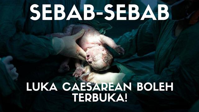 SEBAB-SEBAB LUKA CAESAREAN BOLEH TERBUKA