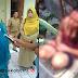 Wanita Berdarah-darah di Cibadak, Istri Bupati Sukabumi Shock, Kecam Aksi Brutal KDRT
