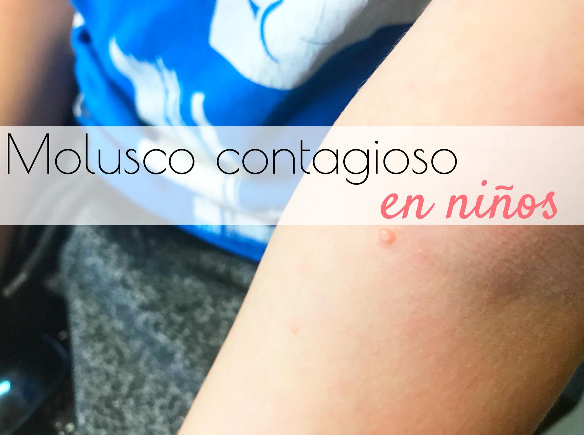 molusco contagioso en niños gololo y toin blog de maternidad
