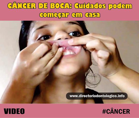 Câncer Boca