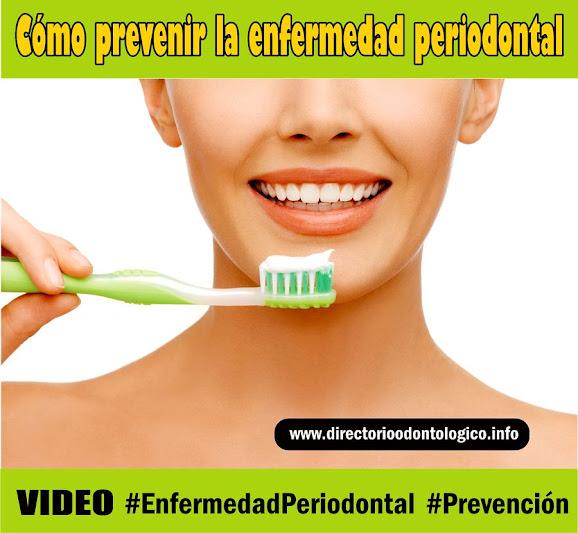prevenir-enfermedad-periodontal
