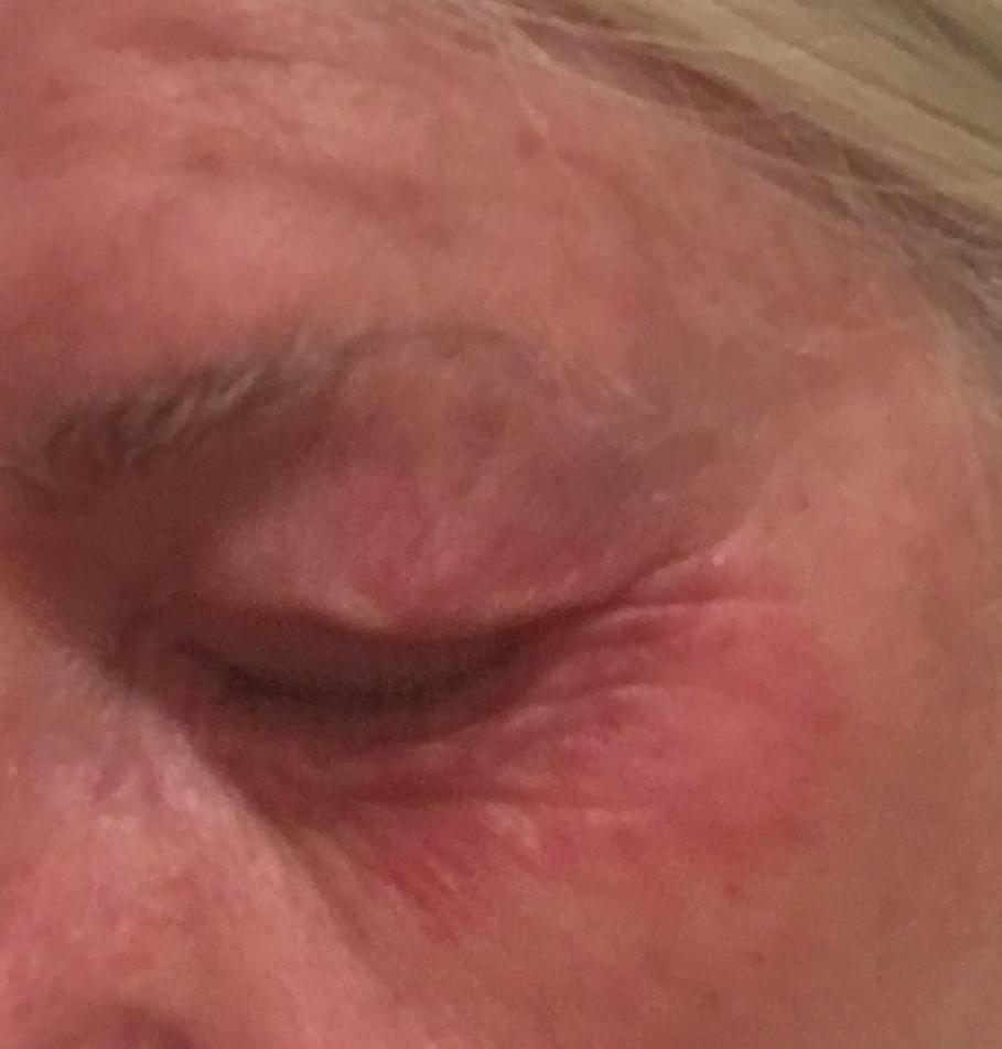 röd under ögonen allergi