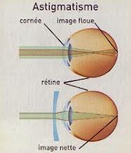 Suplemen Mata Silindris atau Astigmatisme