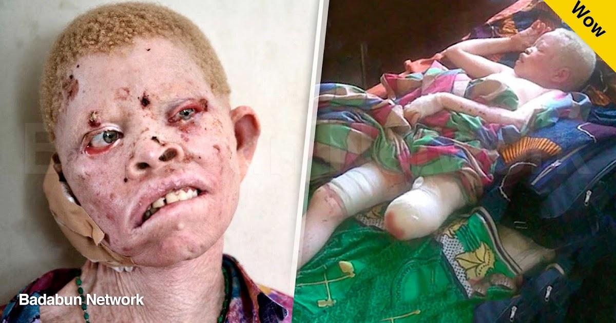 albino africa piel color cazar mutilar brujería