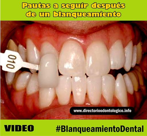 Blanqueamiento-dental-pautas