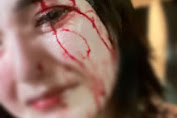 Oknum Anggota DPRD Lebak Dipolisikan Karena Aniaya Istri Siri Hingga Bercucuran Darah