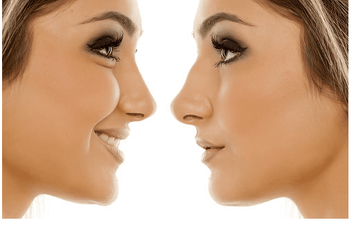 What to Expect After A Nose Job
