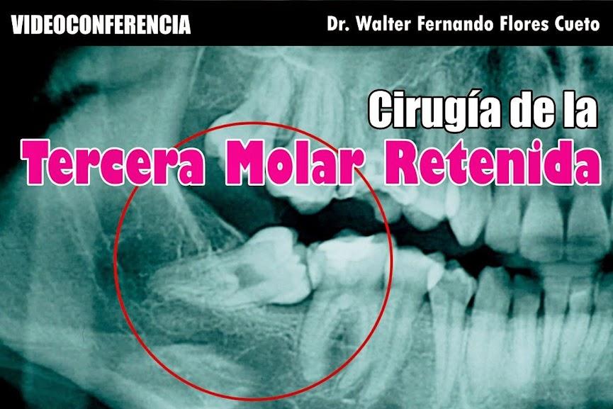 tercera-molar-retenida