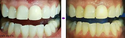 """הלבנת שיניים תוך שעה במרפאה, אסתטיקה דנטלית - ד""""ר גיא וולפין"""