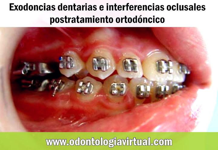 ortodoncia-exodoncia