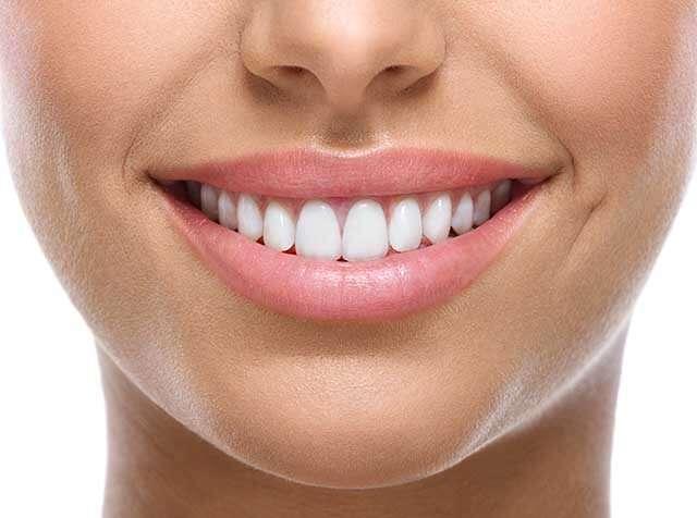 فوائد خل التفاح هو مبيض للأسنان