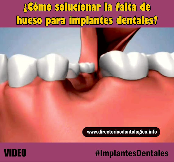 injerto-oseo-implante-dental