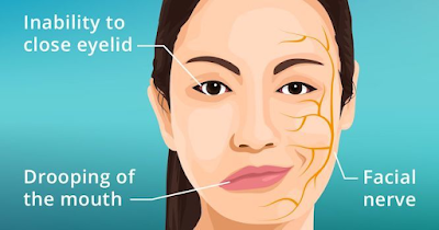 face paralysis in bells palsy
