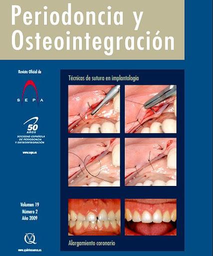 periodoncia-osteointegracion