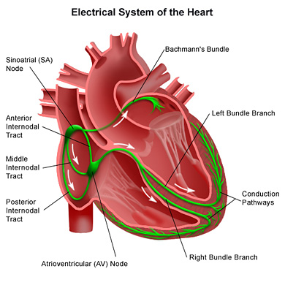 heart arrhythmias causes