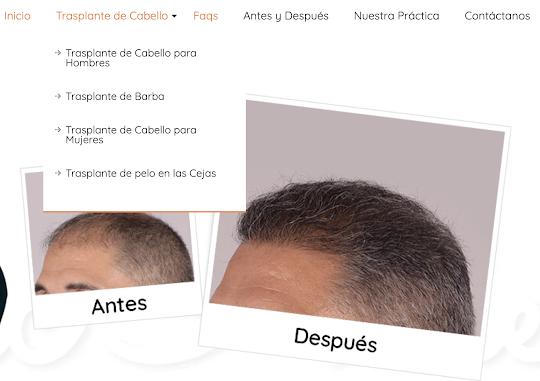 website-trasplante-cabello-puerto-rico